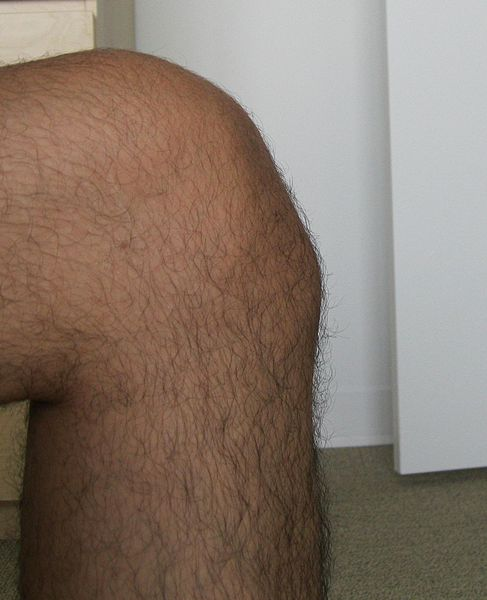 growth pain in knee