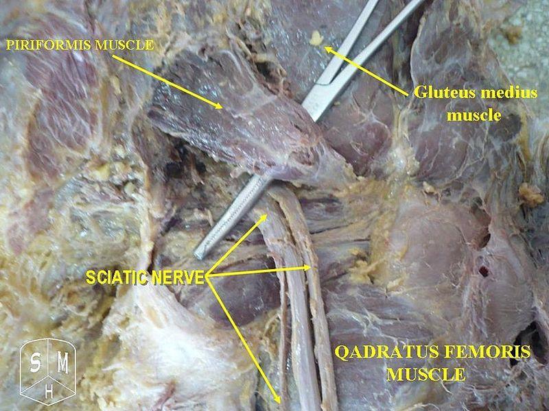 Piriformis syndrome pain in the butt destroy chronic pain publicscrutiny Images