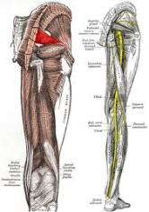 PIRIFORMIS SYNDROME (PAIN in the BUTT) | Destroy Chronic Pain