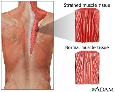 Image Result For Strained Intercostal Muscle