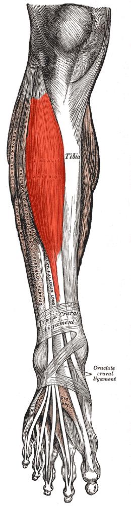 Tibialis Anterior Tendinosis